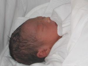 【吸引分娩で出産】保険は効くの?黄疸が出やすいの?かかった費用など
