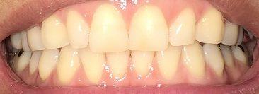 ホワイトニングを始める前の歯