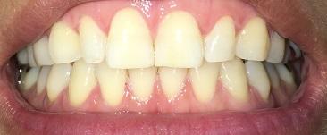 ホームホワイトニング2日目の歯