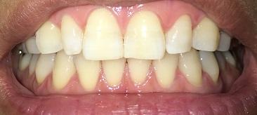 ホームホワイトニング3日目の歯