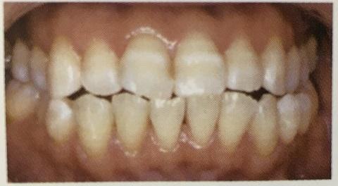 横縞がある歯