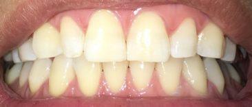 ホームホワイトニング4日目の歯