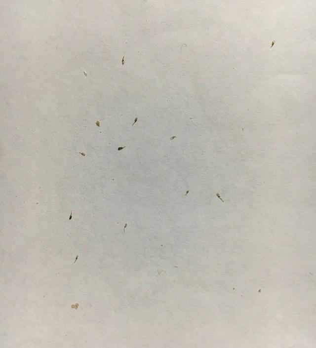 シラミの卵の画像