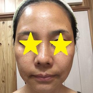 化粧水でパッティングした私の顔