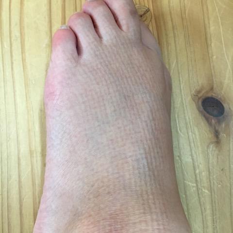 ソファーの痕(足の甲)