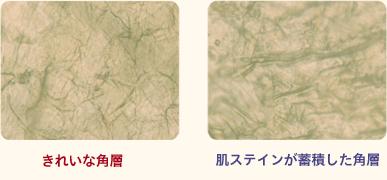 きれいな角層と肌ステインが蓄積した角層