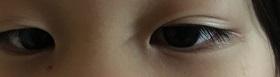 左目がはっきりしてきた