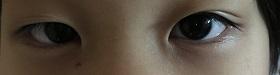 右目は今一つ