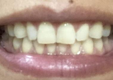 白くなった歯