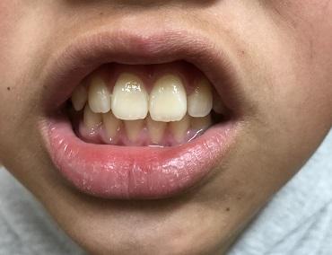 きれいになった歯