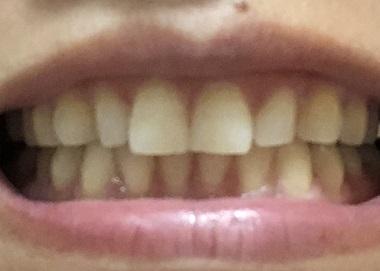 磨く前の歯