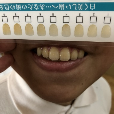 チェックシートで比べた息子の歯