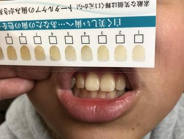 朝の歯磨き後の息子の歯